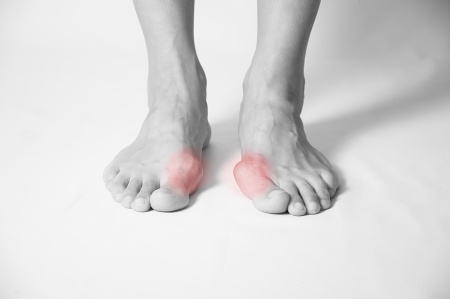 Bunions treatment Sunshine Coast